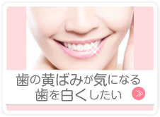 歯の黄ばみが気になる歯を白くしたい